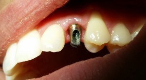 Implantologia Salerno DR.SACCO